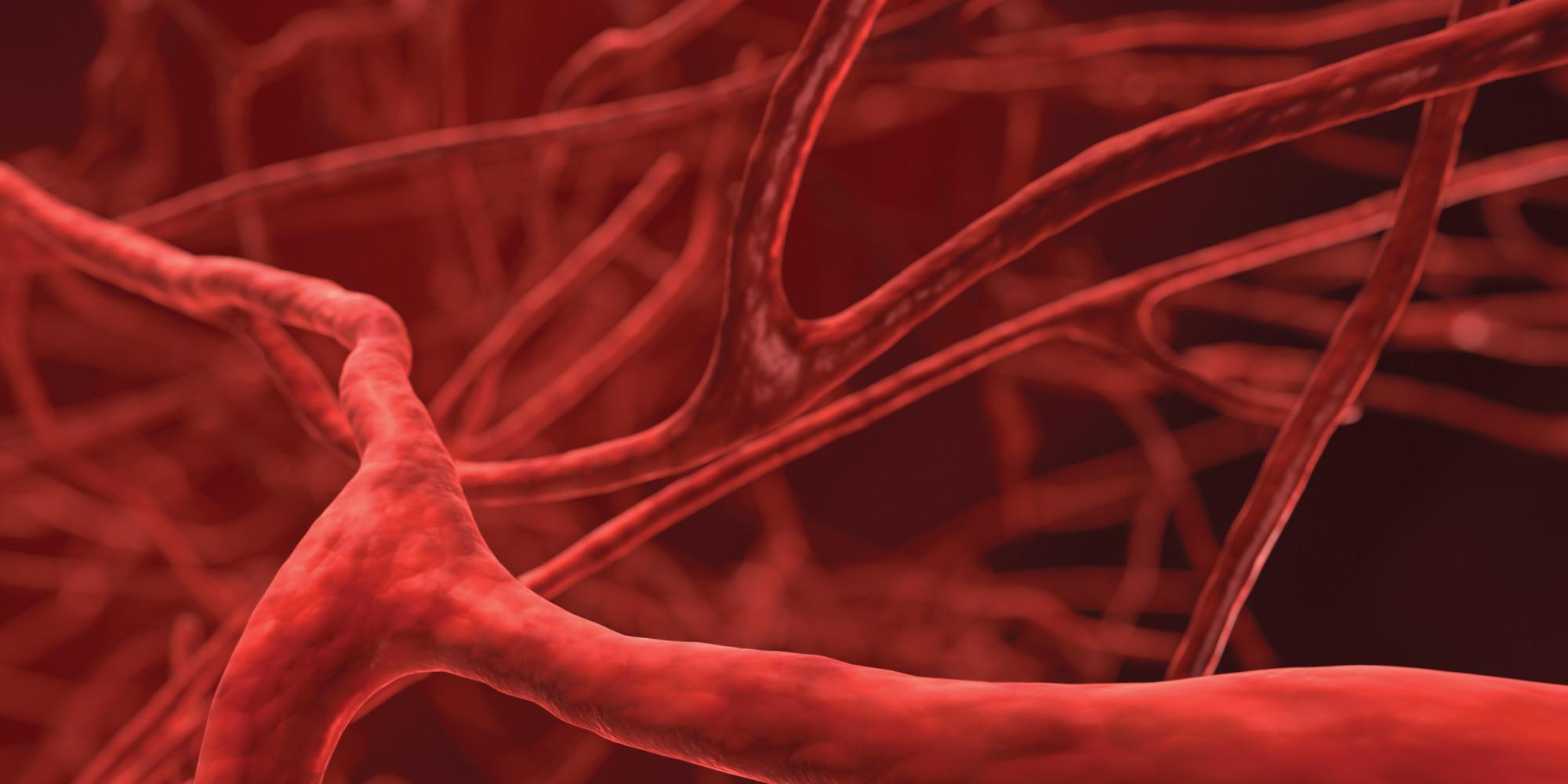 Aterosclerosi e infiammazione vascolare