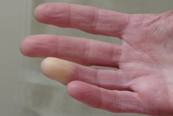 biofeedback per la sindrome di Raynaud