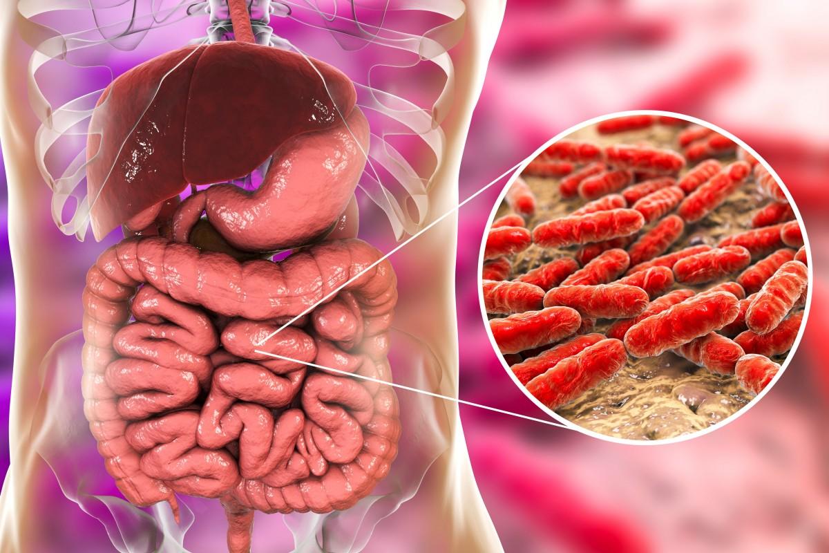 Disturbi intestinali come causa di infiammazione sistemica