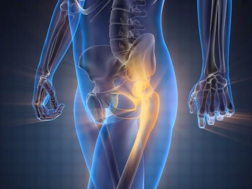 osteoporosi e alimentazione