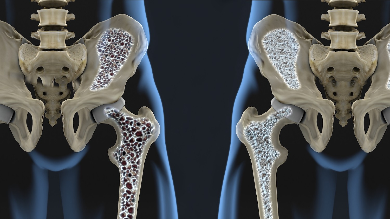 Osteoporosi come fare prevenzione