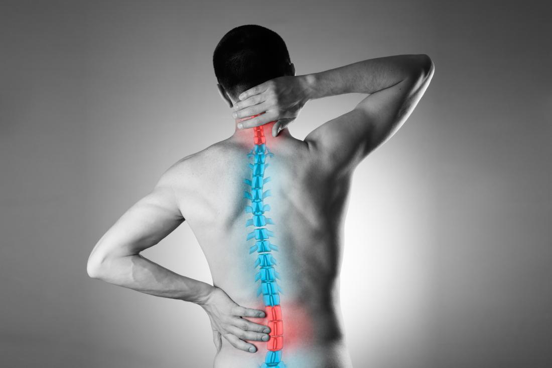 Ozonoterapia: quando i benefici arrivano su più fronti da patologie del disco intervertebrale