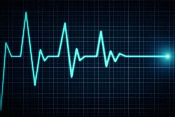 variabilita frequenza cardiaca