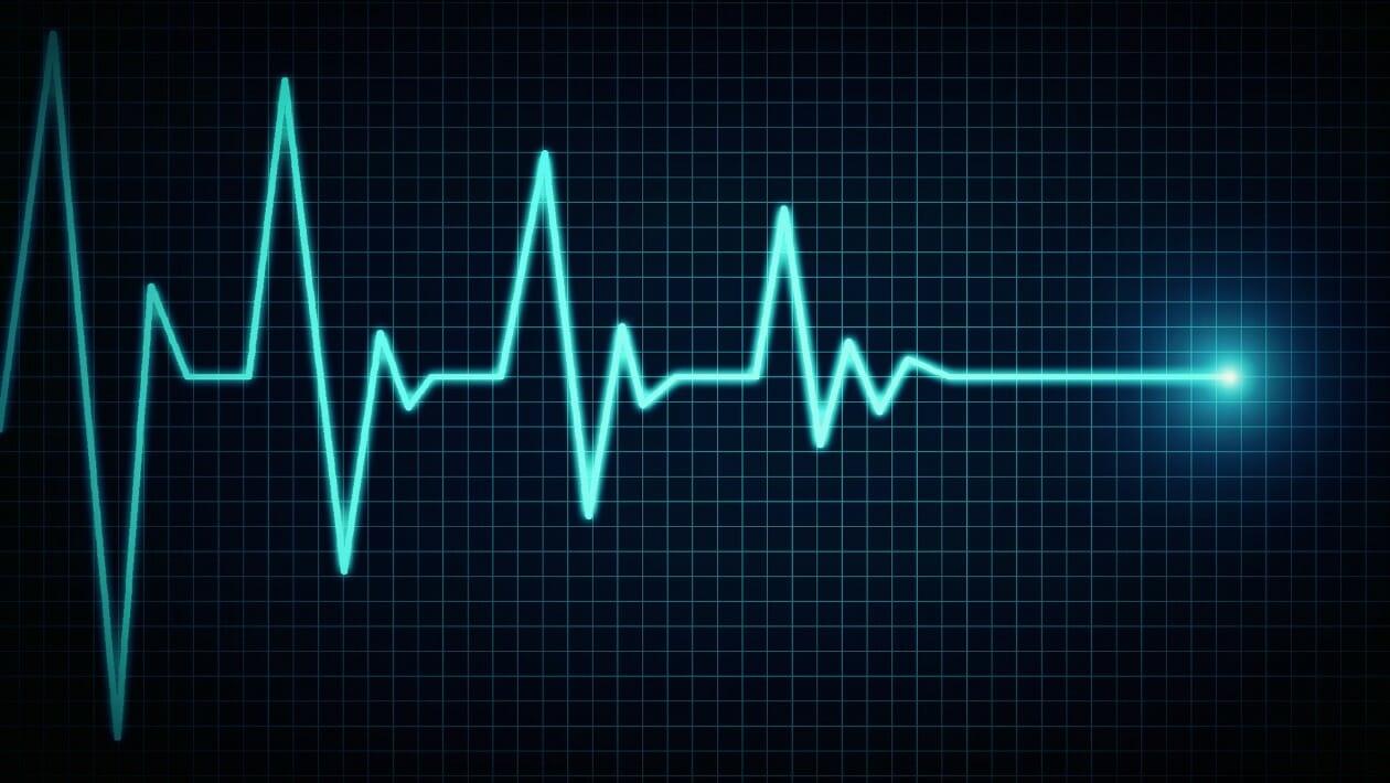 Variabilità della frequenza cardiaca HRV